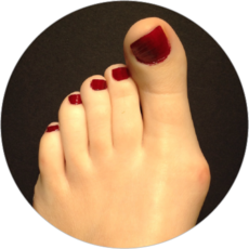 Long 1st toe