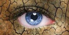 [S2] Trockene Augen