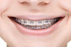 I'm want metal braces (cheapest option)
