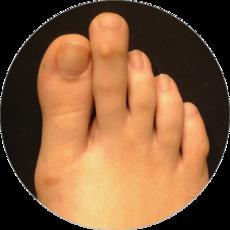 Long 2nd toe