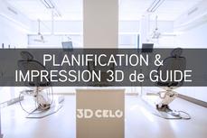 Planification & Impression 3D de votre guide chirurgical - 5 jours ouvrés