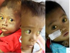Anak sakit dari keluarga miskin