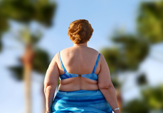 Obezite