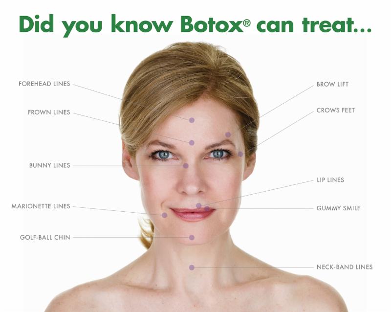 BOTOX® Toronto   Anti-Wrinkle Injections Mississauga